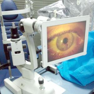 Tratamiento para el Ojo Rojo Óptica en Estepona